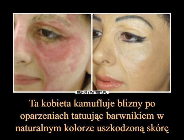 Ta kobieta kamufluje blizny po oparzeniach tatuując barwnikiem w naturalnym kolorze uszkodzoną skórę