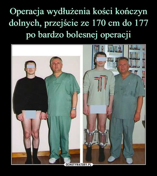 Operacja wydłużenia kości kończyn dolnych, przejście ze 170 cm do 177 po bardzo bolesnej operacji